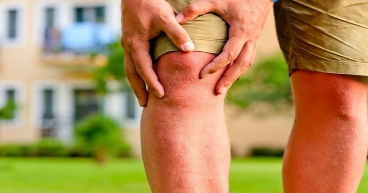 ropė kurios priklauso sąnarių gydymo sąnarių liga viso kūno