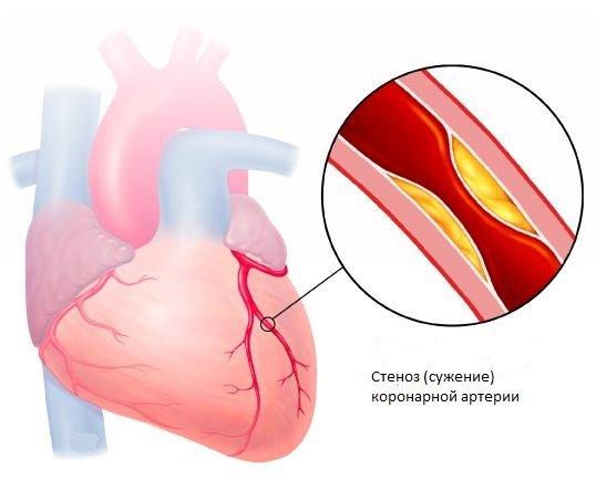 skausmas kairėje jungties pečių priežastis gelį iš kaklo osteochondroze