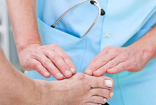 liaudies receptus artrito pirštų gydymo gliukozamino ir chondroitino 90 kapsulių