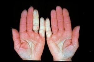 liga iš pirštų sąnarių skausmas visų sąnarių po miego