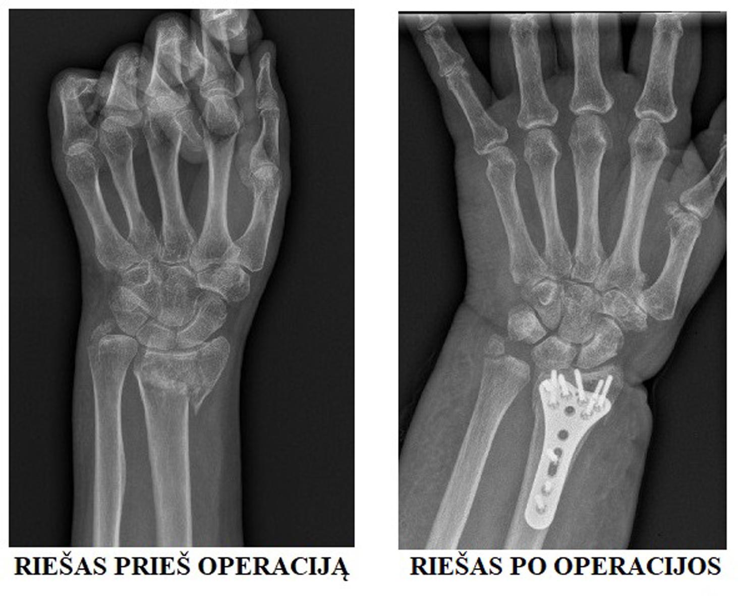 skausmas ranka ranka jungtiniame nėra lūžių o ne dislokacija