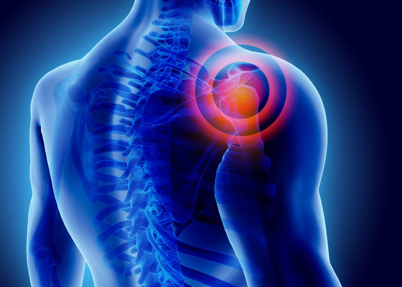 ką daryti su skausmais pečių sąnarių vaistai nuo kaklo osteochondrozės