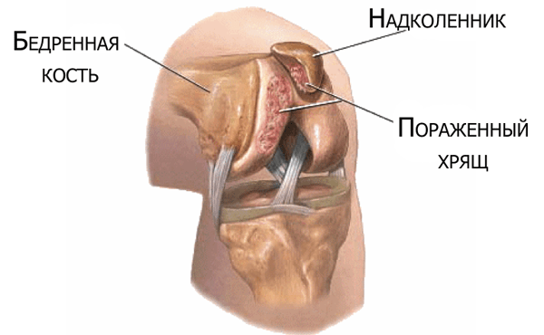 kaip padaryti tinktūros už sąnarių gydymo tepalas artrito rankų gydymui