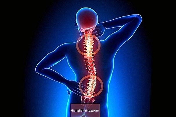 apatinės nugaros dalies skausmo gydomi tepalai pirkti tepalas bendrą turtą