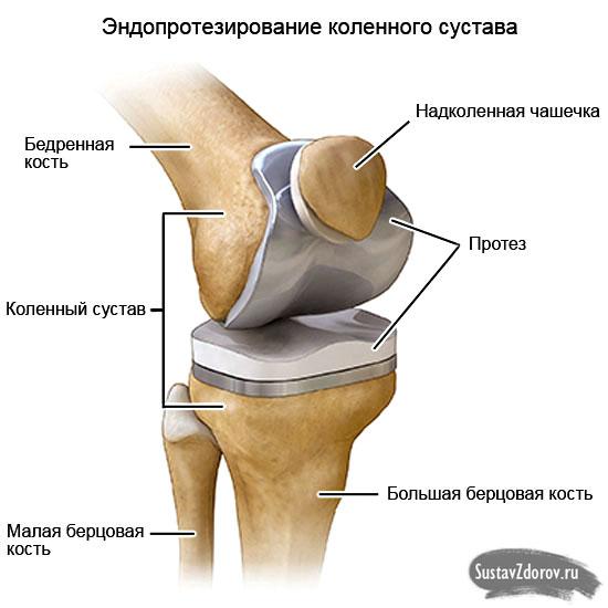 osteopathic gydymo metodas sąnarių krūtinės skausmas kosulys