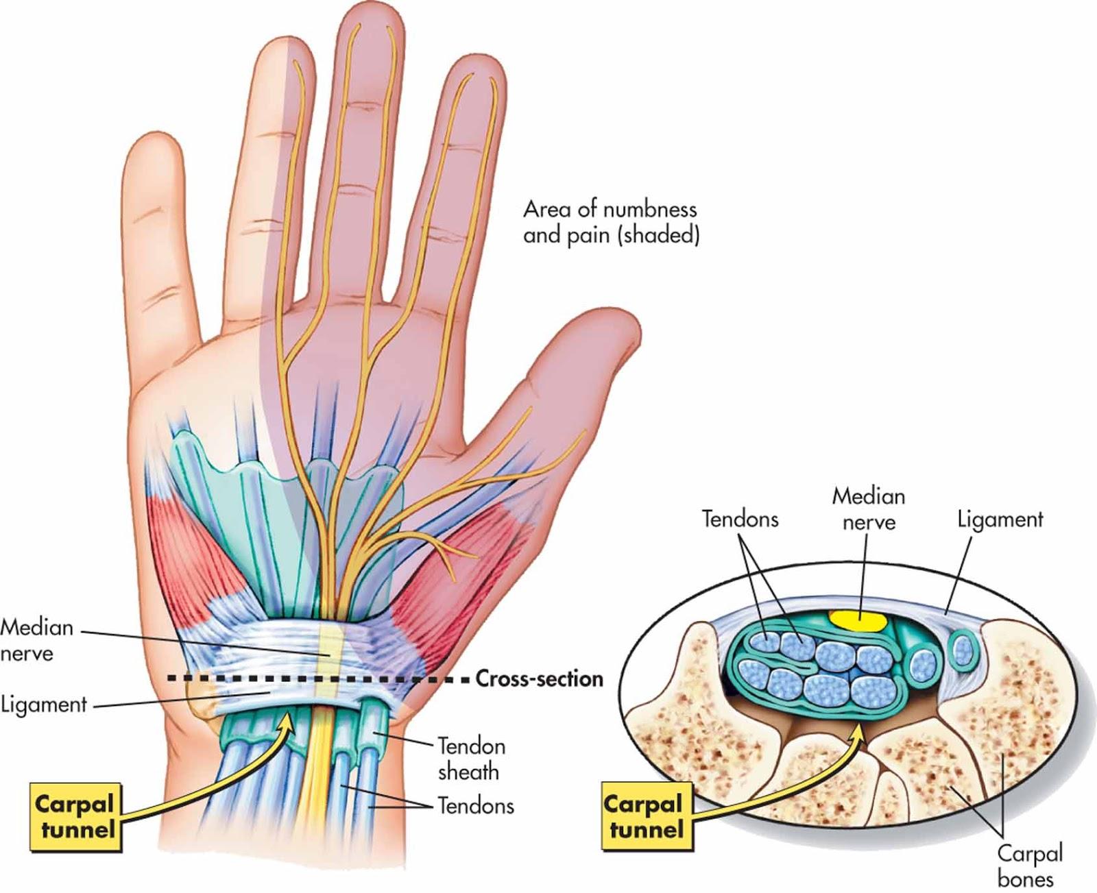 sore sąnariai ant kairiosios rankos pirštų liaudies gynimo priemonės nuo sąnarių nuomonių uždegimas