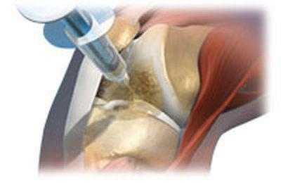 artritas iš seklių pėsčiomis skausmas per 30 metų sąnarių