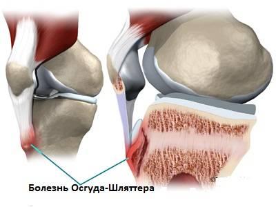 gonartrozės liga susta sąnarinio skysčio valymo ginklų