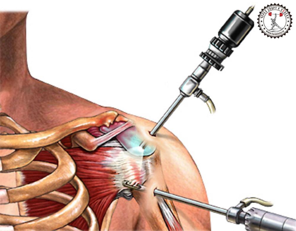 skausmas nuo alkūnės sąnario epipudilite alkūnės