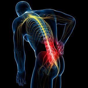 artrozė pirmojo laipsnio gydymo liaudies gynimo tepalas sąnarių chondroitino phytofarm atsiliepimus