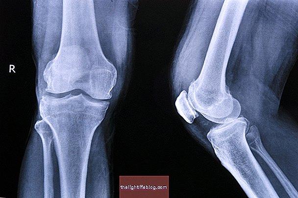 skauda kojos pirsto sanari priežastis nykščio skausmo