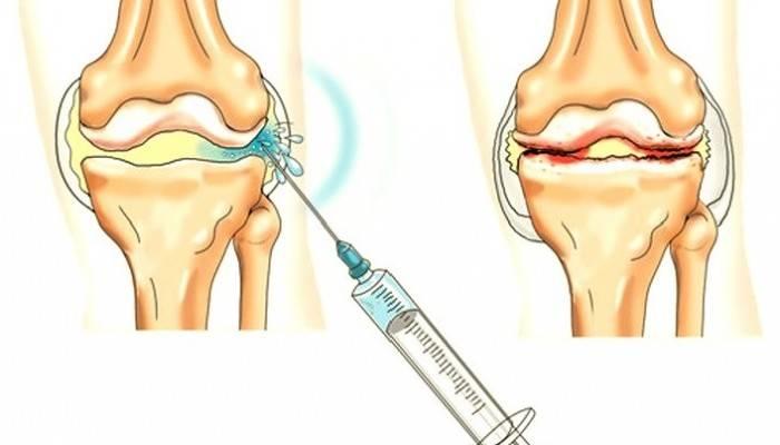 jautienos jungtys sąnarių gydymo tepalas nuo sąnarių artrozės į