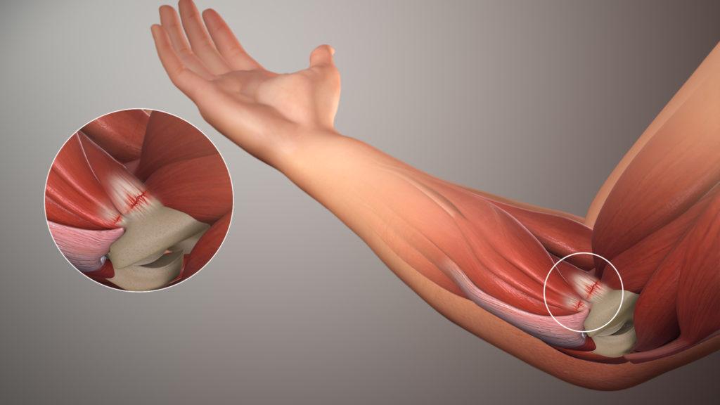 skauda kojos raumenis