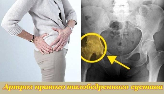 artrozė pirmojo laipsnio gydymo liaudies gynimo agarkova iš bendros balzamas