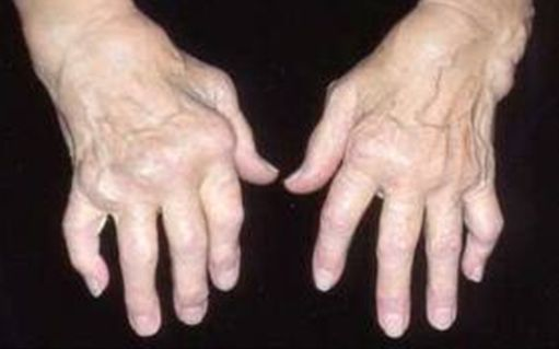 efektyvus tepalas į artritu rankas