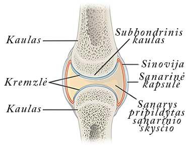 artrozė priežastis gydymas don su artrozės sąnarių