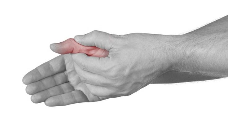 liaudies būdų gydyti skausmą peties sąnario ebonit į sąnarių gydymo
