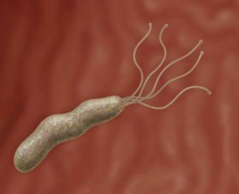 helicobacter sąnarių skausmas posūkiais sąnarių gydymo grupėse