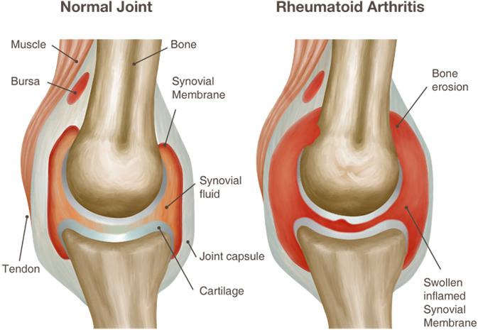 ūmaus artrito sąnarių gydymo skausmas nurofen sąnarių