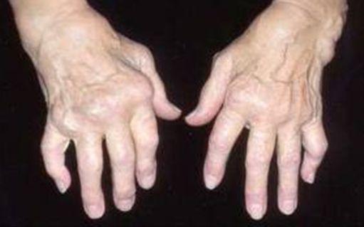 sąnarių liga sukelia ranką klubo skausmas ir dubens