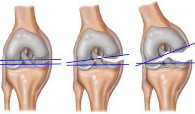 artrozė peties etapas