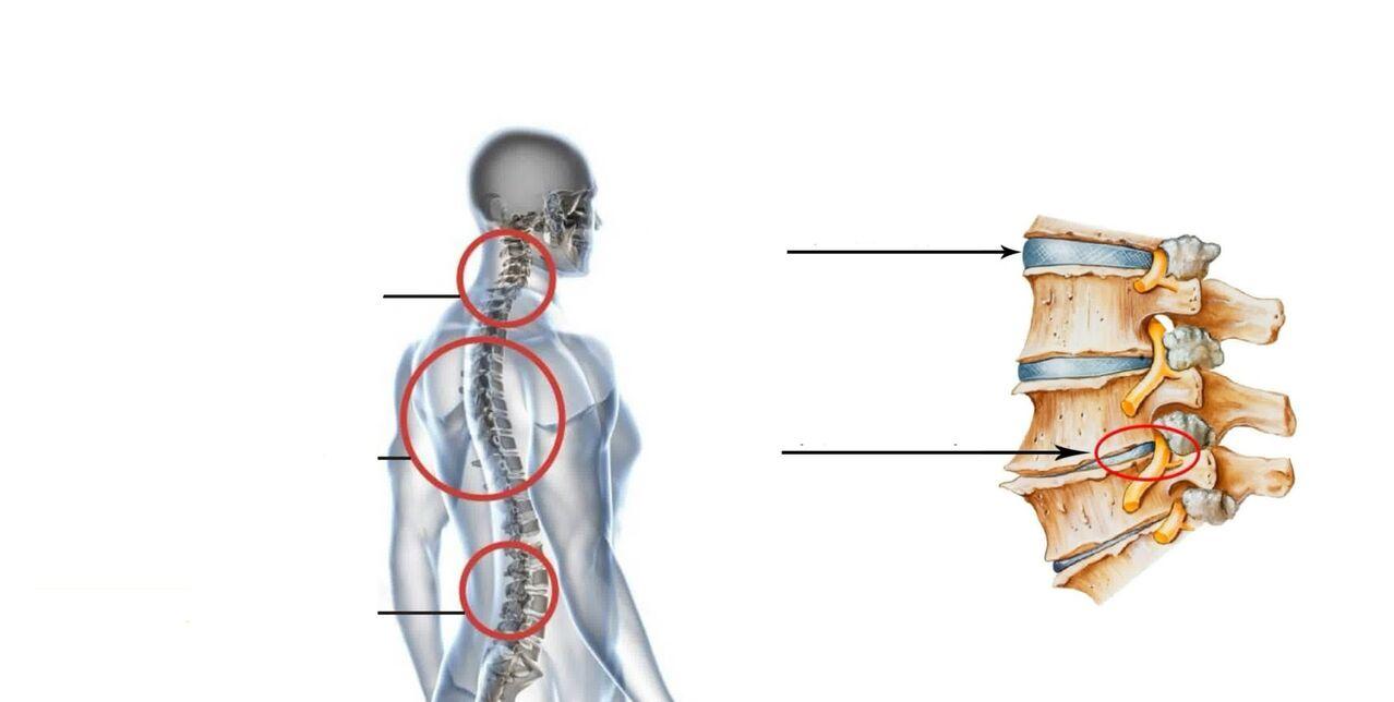 aušinimo gelis sąnarių gydymo