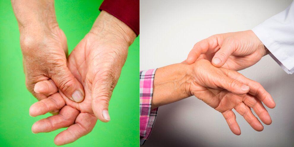 nuostabus želė su osteochondroze eteriniai aliejai su skausmai sąnarių ir tempimo