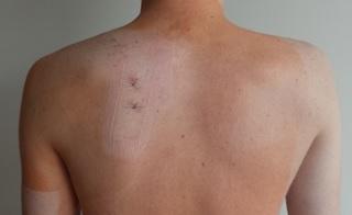 skridau petį iš bendro gydymo išlaikyti skausmo termin