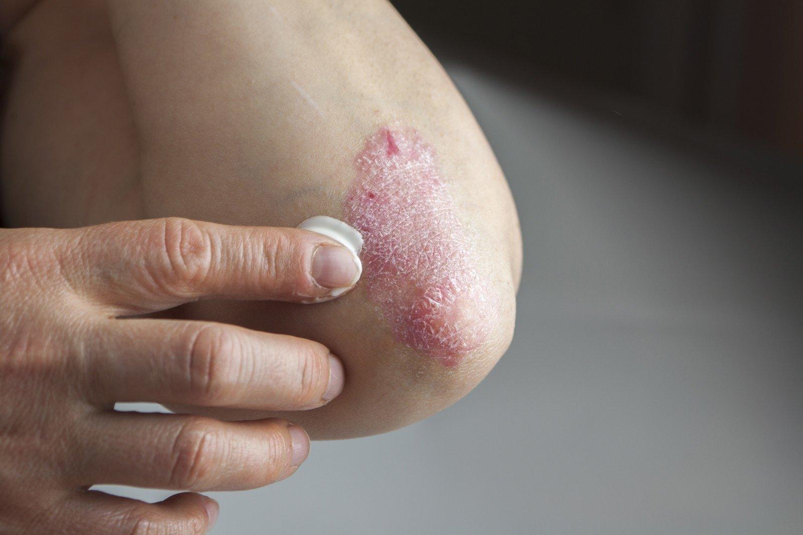 gydymas artrozės sąnarių sustabdyti 2 laipsnių su skausmu raumenų ir sąnarių gydymo liaudies gynimo