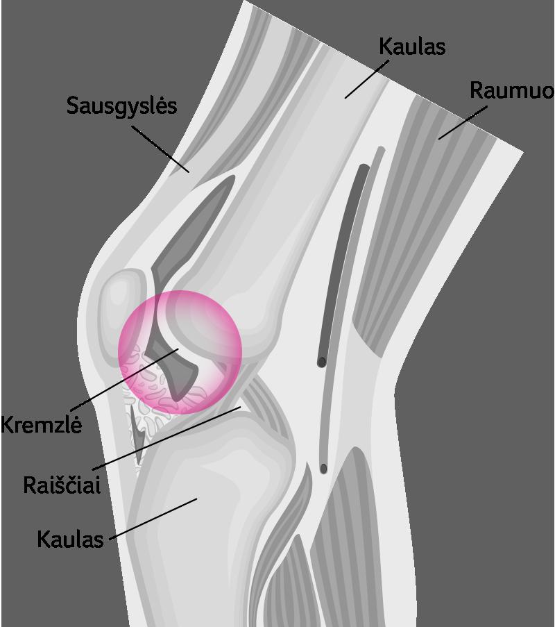 dermatitas sąnarių skausmas jei alkūnės sąnario skauda nei tepinėlis