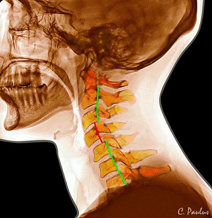 kaklo slanksteliu osteochondroze blocade už skausmas peties sąnario
