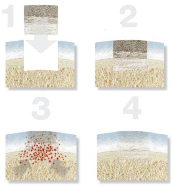 regeneravimas kremzlinio audinių ką daryti su pirštu artritas