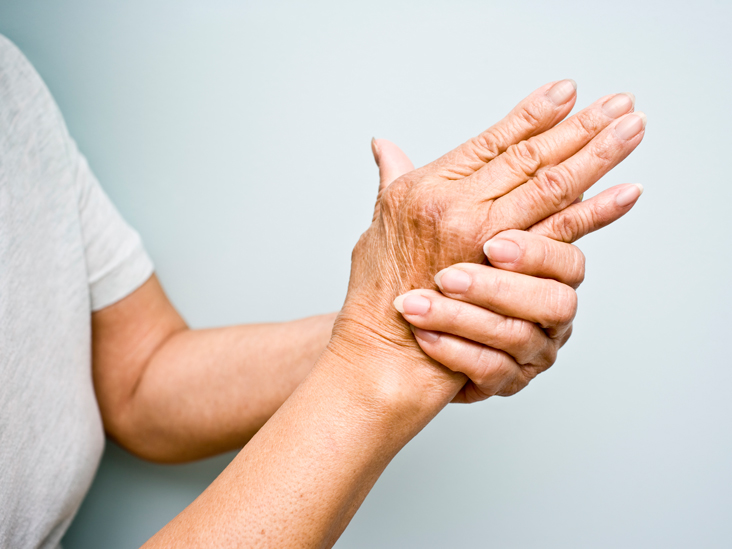 artrito artrito gydymo veiksmai