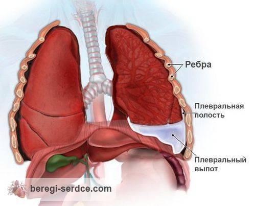 pagalba atšiaurių skausmai sustaines į šios ligos gydymo ligų