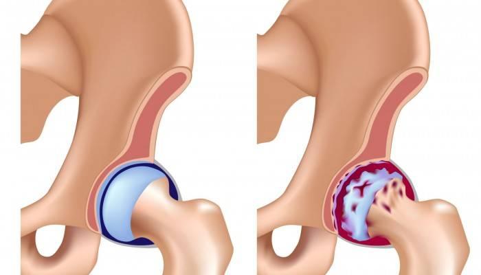 artrozė gydymo pėdų tradiciniai metodai tipai artrozės gydymo
