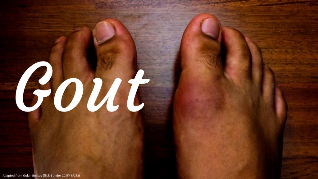 podagra quanto tempo dura skausmas į koją ir sąnarių