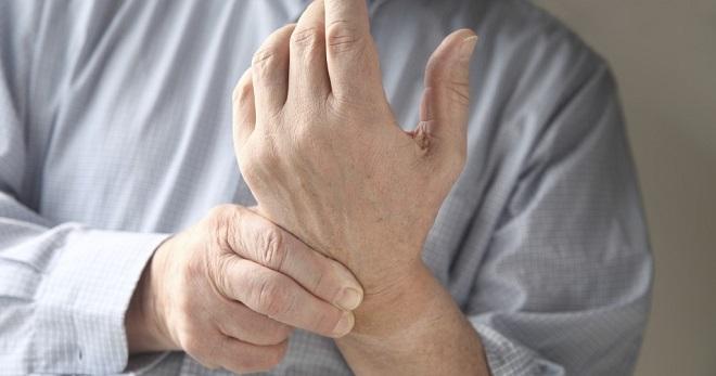 artritas mažų sąnarių ant pirštų