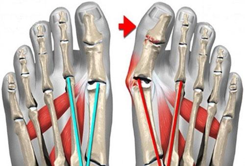 artrozė gydymo pėdų tradiciniai metodai swollen painful knuckle joints