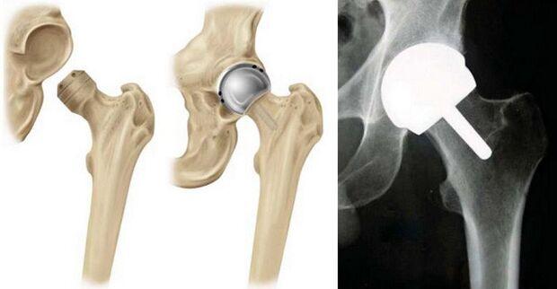 artrozė iš kirkšnies sąnarių kaulų skausmas alkūnės valymo liaudies gynimo