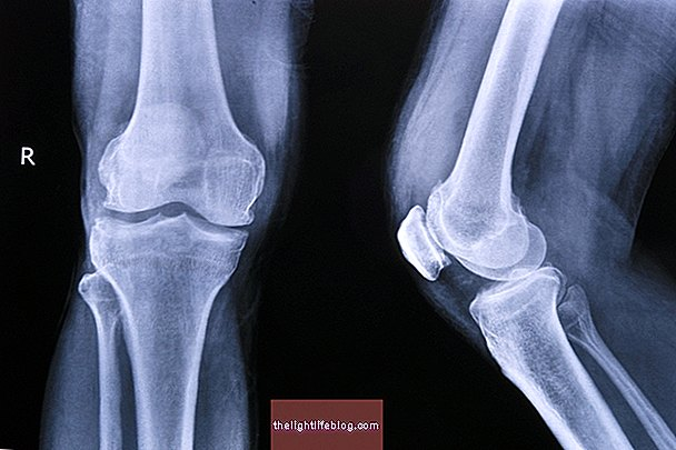 artrozė kelias gydymo tempimo skausmas