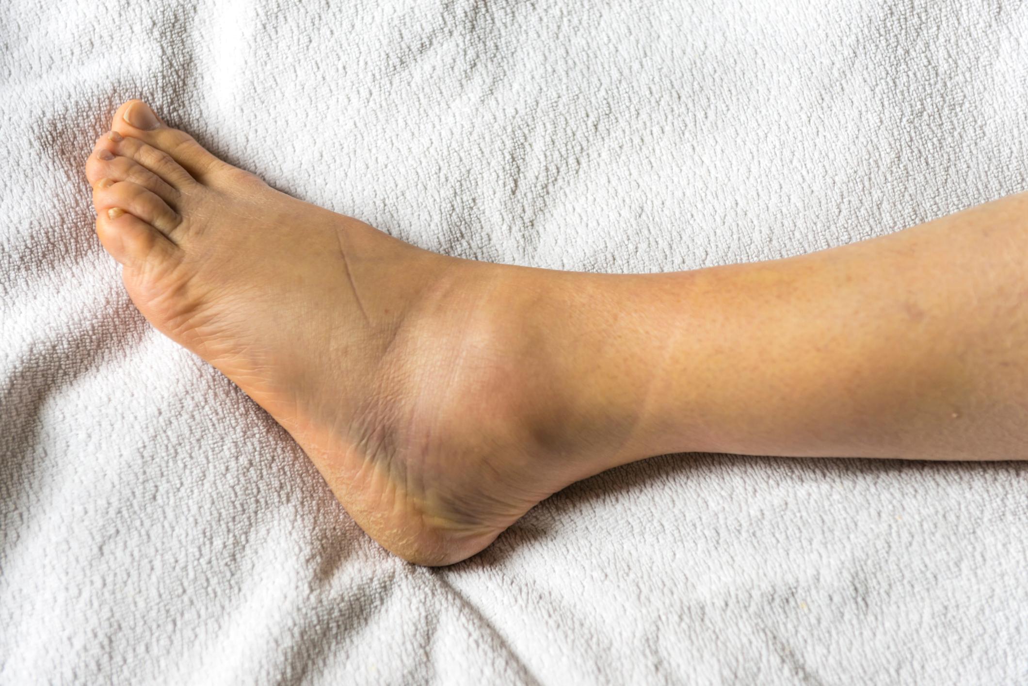 edema painful joints valymo turkija sąnariai