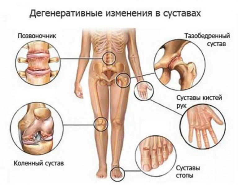 artrozė ir jo gydymas