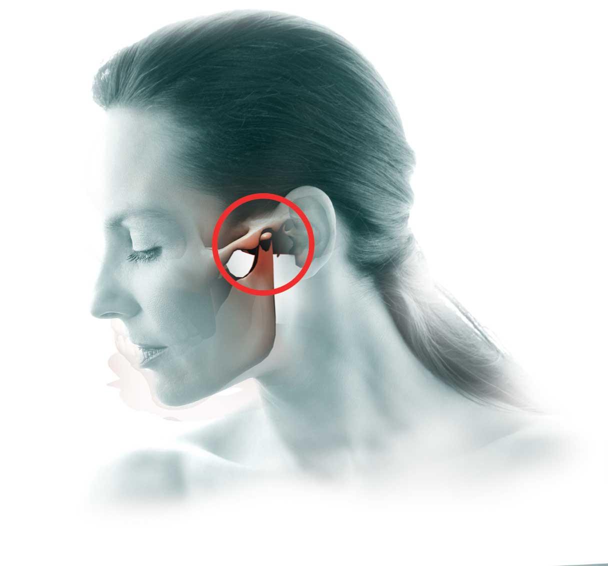 ligos nuo žandikaulio gydymo sąnarių