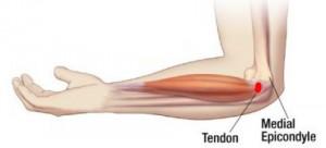 artritas rankos nuimkite sąnarių uždegimą rankose