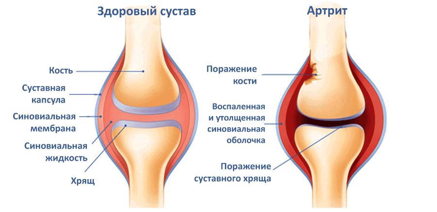 sustav lotynų liga ką daryti jei į rankas sąnariai serga