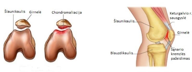 blauzdikaulio sąnarių skausmas priežastys skausmai visų sąnarių
