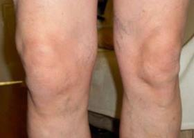 gydymas miesto bendrą artrozės namuose protingas bendra kremas kaina