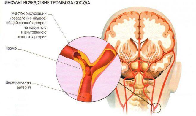 tepalas nuo sąnarių artrozės į