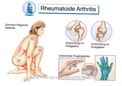 komplikacijos ligų sąnarių skausmas ir rankų sąnarių uždegimas