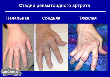 pašalinti sąnarių skausmas namuose artrito rankų tepalas